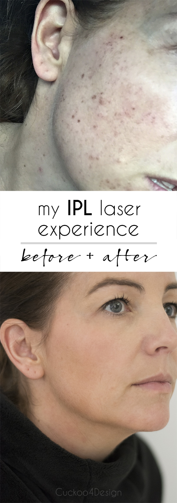 IPL treatment before and after